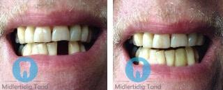 erfaringer midlertidig tand