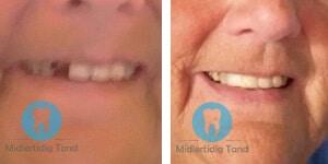 for efter midlertidig tand