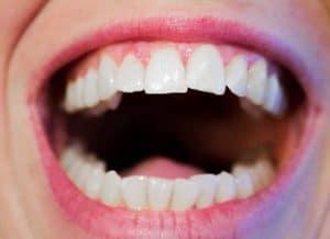 lav selv kunstige tænder